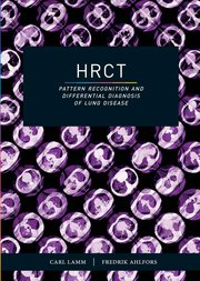 HRCT Book cover