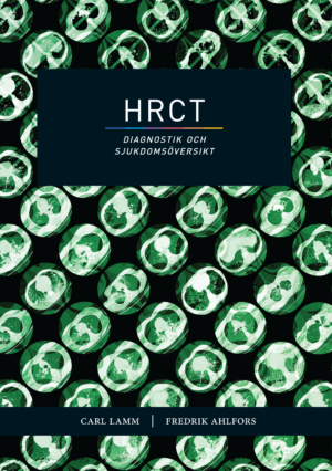161121.HRCT.omslag.sve